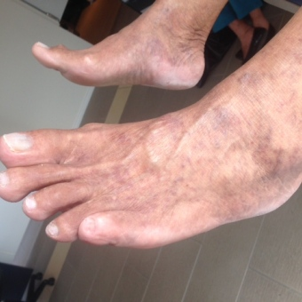 I have diabetes, how do I look after my feet?